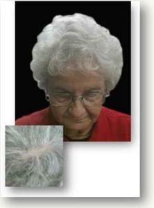 Myrtle Hair Banger Before & After